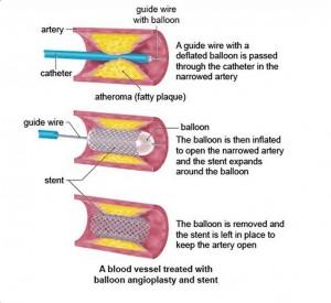 Scientists_Make_Mistakes-Angioplasty