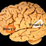 Area Of Brain Involved In Speech Processing Isn't Where It Was Thought To Be