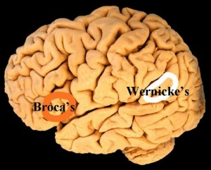 Scientists_Make_Mistakes-WernickesArea