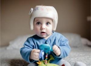 Scientists_Make_Mistakes-BabyWearingSkullCorrectiveHelmet