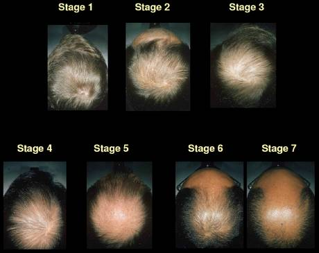 Scientists_R_Stoopid_Stages_Of_Hair_Loss