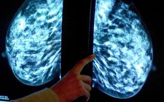 Scientists_R_Stoopid_Hormone_Replacement_Therapy_Triples_Chance_Of_Breast_Cancer