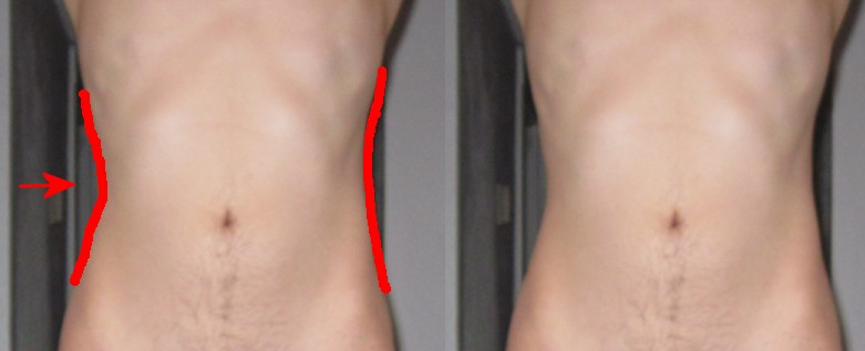 Anorexia_Dent_Gallery_033.jpg
