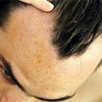 Cause Of Male Pattern Baldness Discovered