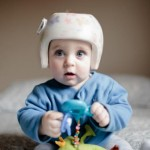 Helmet therapy for infant positional skull deformation 'should be discouraged'