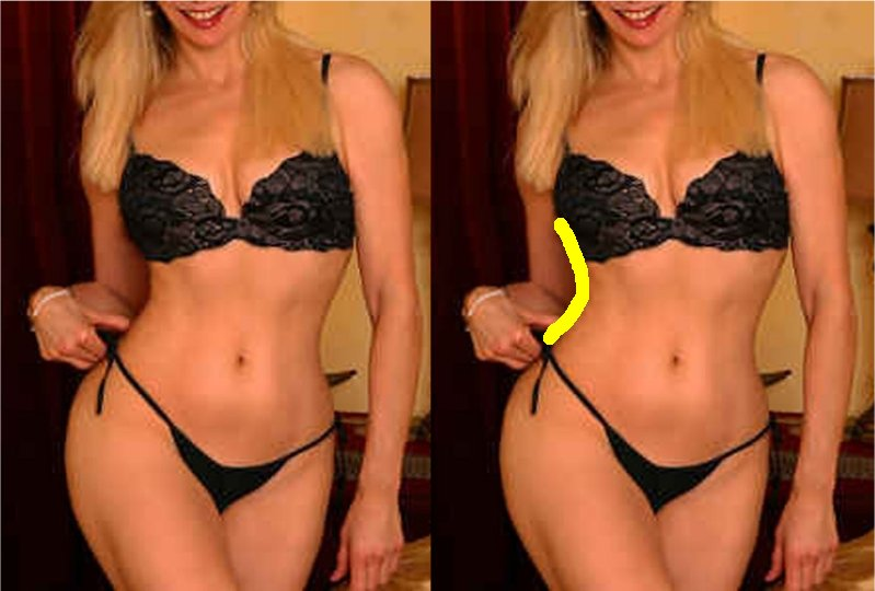 Anorexia_Dent_Gallery_040.jpg